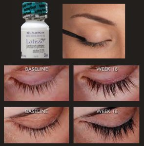 Latisse. The cure for thinning eyelashes. Fort Erie, Niagara Ontario.