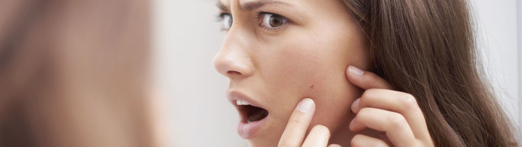 Remove adult acne with simple treatments available at your cosmetic surgeon.