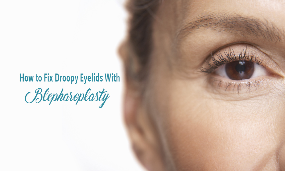 Woman with droopy eyelid. How to fix droopy eyelids with blepharoplasty, performed by Dr. Teal in Fort Erie, Niagara.