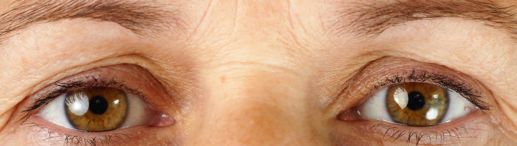 Older women. Brown eyes. Signs of aging. Wrinkles