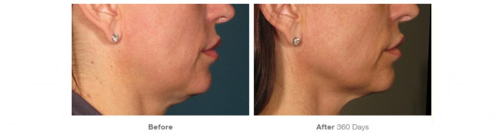 Ultherapy before and after treatment.